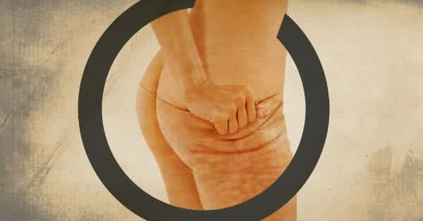 narancsbőr avagy cellulitisz - vetkőzd le!