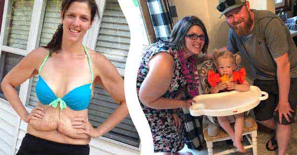 Brooke azóta férjhez ment, és született egy kislánya. Most újra túlsúlyos, elvesztette a sikertörténetét.