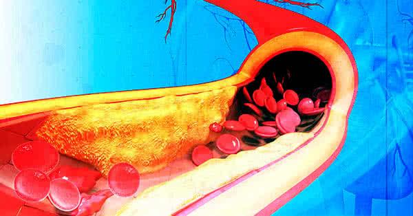 Nézzünk más szemmel a koleszterinre