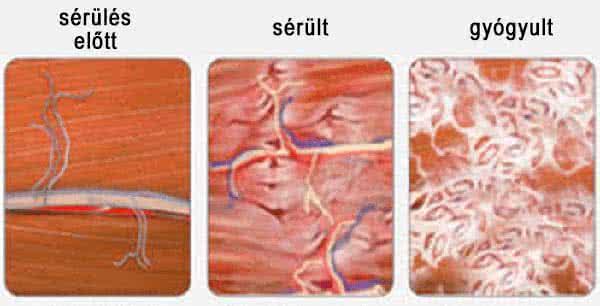 Az izomlázat az edzés közben szerzett, az izmokon található mikroszkópikus méretű sérüléseknek, tulajdonképpen apró szakadásoknak köszönhetjük